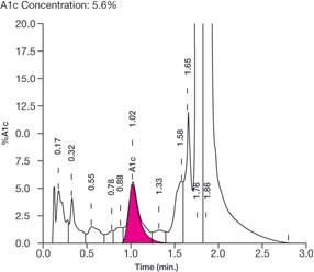 Emoglobinopatie Analisi Cliniche Orlotti Battipaglia